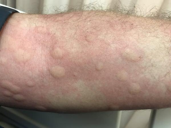 reacción alérgica vacunación